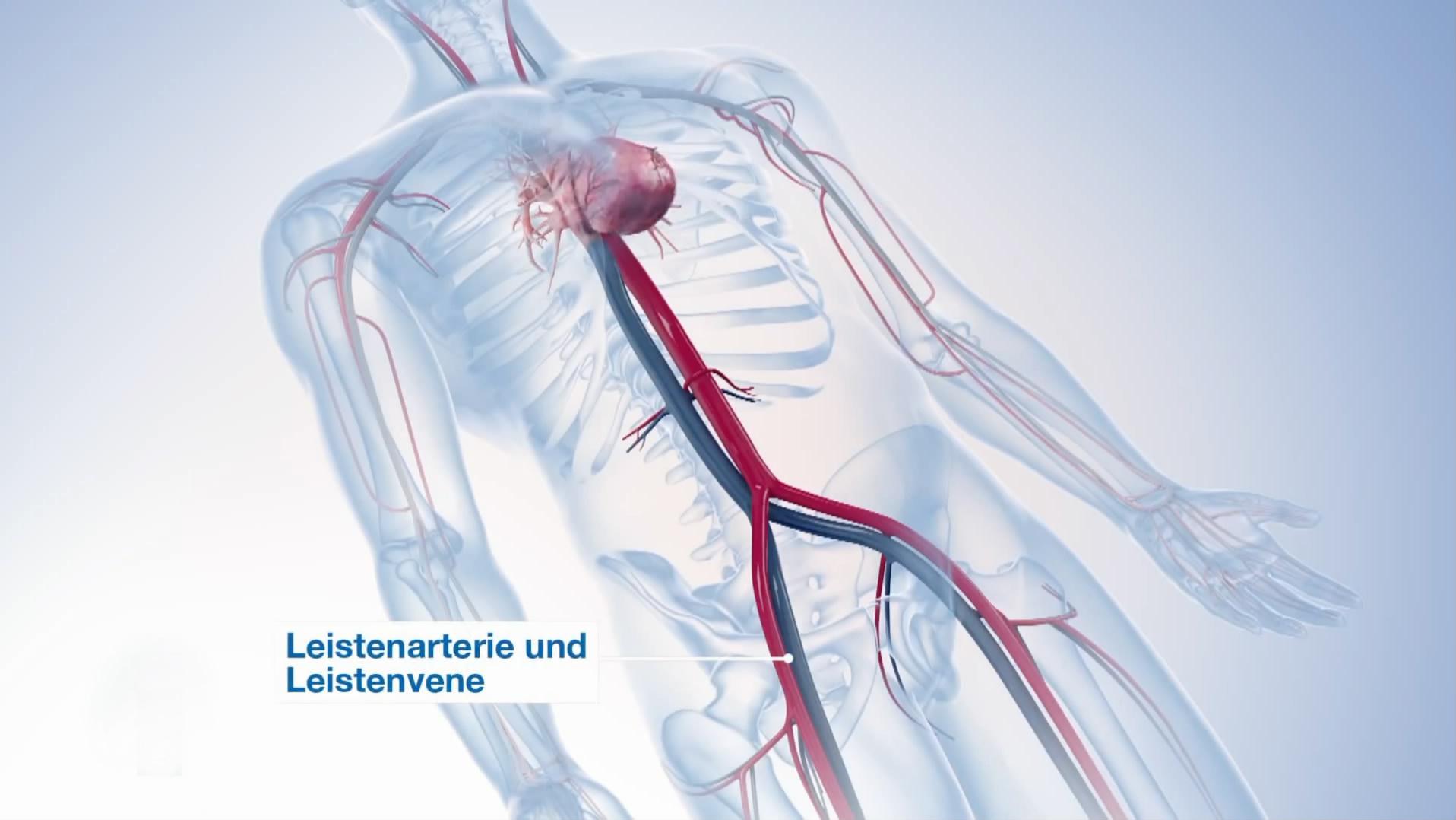 心脏手术三维动画